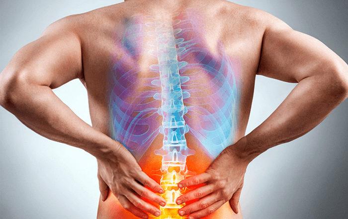 ¿Qué es el dolor lumbar y cómo solucionarlo?