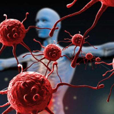 ¿Qué son las enfermedades autoinmunes y cuáles son las más conocidas?